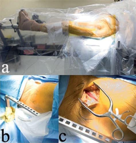 hana hook a leg positioning on the hana orthopedic table is sho