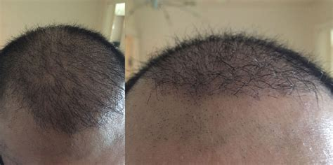 hair growth 4 months picture a new hair transplant journey is underway hasson wong