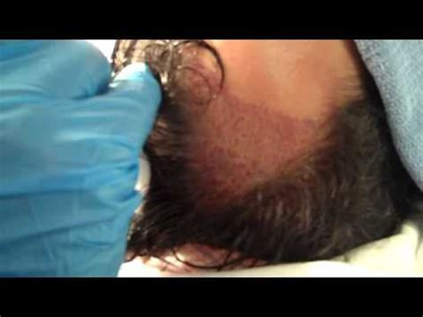 fue vs strip fue vs donor strip hair transplantation which method is