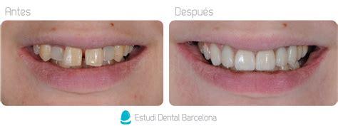 precios de fundas dentales tratamientos con coronas o fundas dentales en barcelona edb