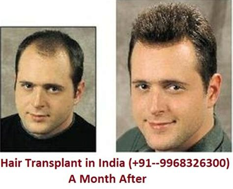 the very best body hair transplant in delhi 17 best images about hair transplant on pinterest fue