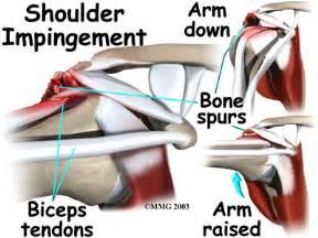 Biceps rupture eorthopod com