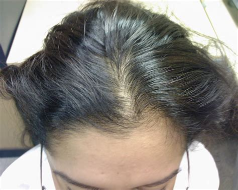 hair of 25 year old the hair centre female hair loss in a 25 year old see