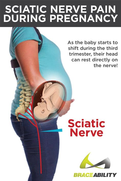 why back pain after c section 17 best images about pregnancy pain maternity back