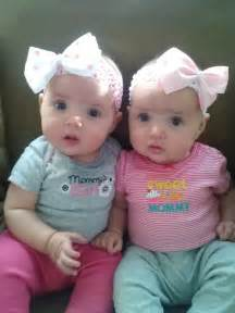 Identical twins r amp r identical twins pinterest