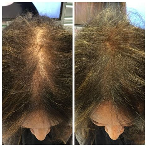 viviscal before after viviscal hair filler fibers demos at abs2015 absupdates