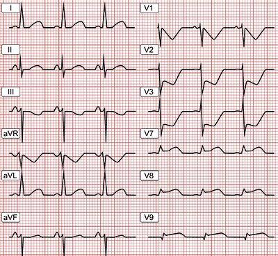 1591034892 ecg pocketcard ecg en cardiopat 205 a isqu 201 mica cardio cardiology and medicine