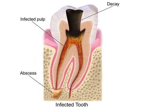 infezione guancia interna what is an dental abscess altman dental