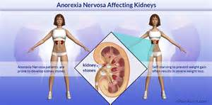 anorexia nervosa affecting kidneys risk factors causes complications tests treatment