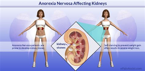 anoressia nervosa test anorexia nervosa affecting kidneys risk factors causes