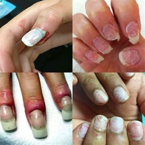 Acrylic Nail Salon by What Are The Drawbacks Of Wearing Acrylic Nails Quora