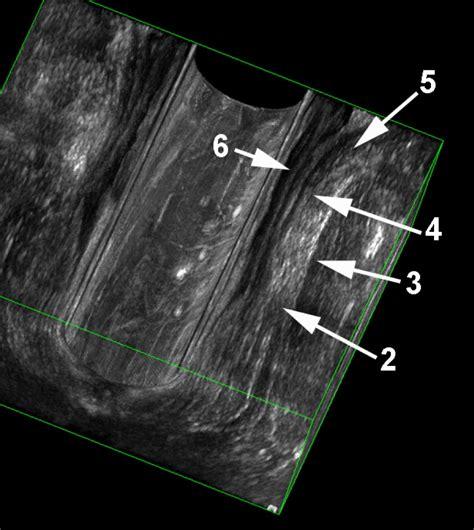 sfintere anale interno studio ecografico della regione anale colon explorer