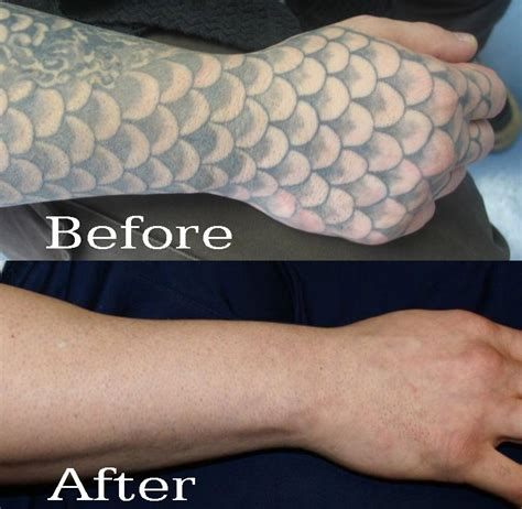 laser tattoo removal sleeve wavelengths matter removal regen laser