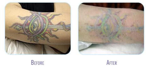 laser tattoo removal raleigh nc laser removal before and after gallery bodylase