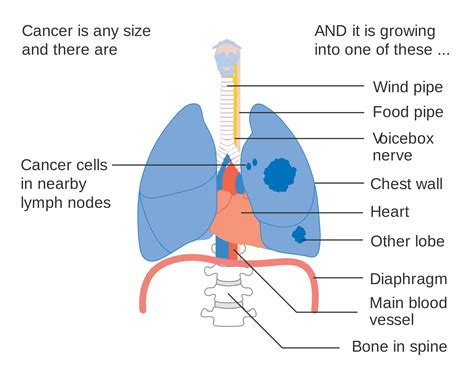 cancer diagram lung cancer diagram images