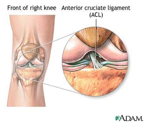 cruciate ligament tear acl tear brisbane knee and shoulder clinic dr macgroartybrisbane knee and
