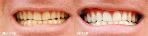teeth whitening vancouver downtown vancouver dentist