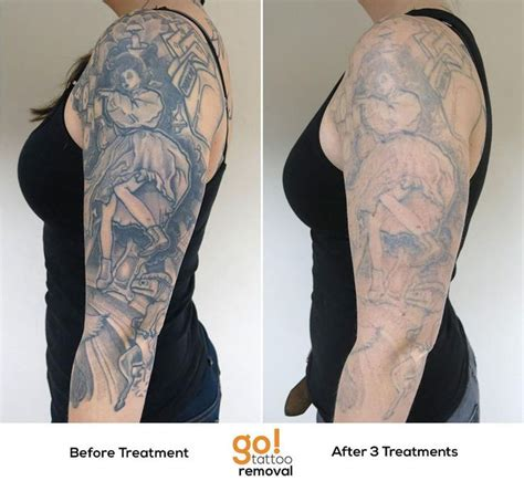 sleeve tattoo removal 840 best removal in progress images on