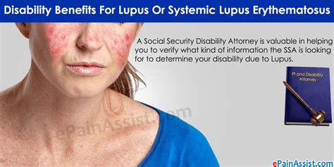 sle of will disability benefits for lupus or systemic lupus erythematosus