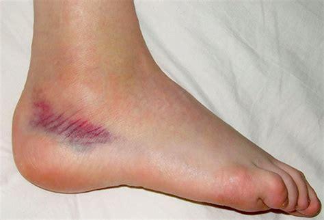 sprained ankle ankle sprain anatomybox