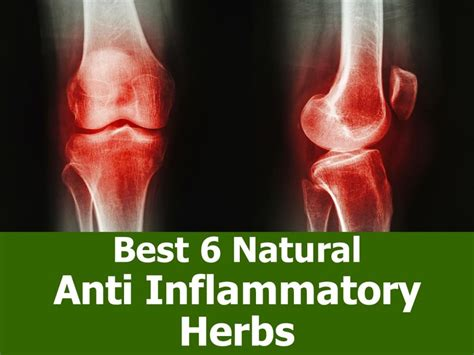 best medicine for inflammation best 6 natural anti inflammatory herbs