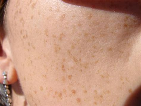 spots on skin brown spots appearing on skin