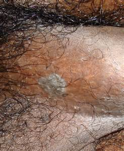 what color are warts condyloma acuminatum warts the clinical advisor
