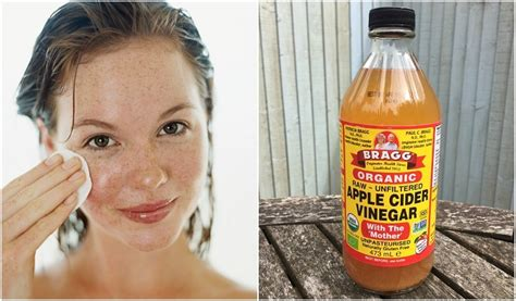 Apple Vinegar For Face | 5 reasons to wash your face skin with apple cider vinegar