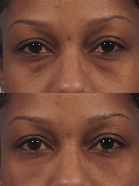 black under eye laser treatment to remove bags under eyes style guru