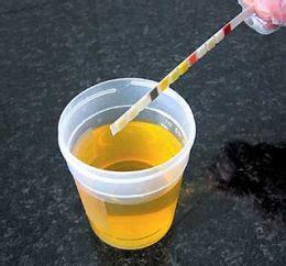 esame microscopico sedimento leucociti salute e bellezza home leucociti elevati nelle urine