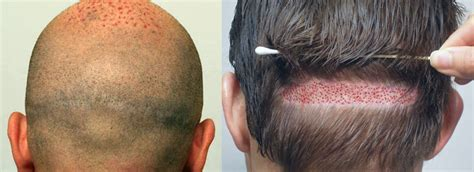 hair plugs vs transplant fue versus hst hair transplant
