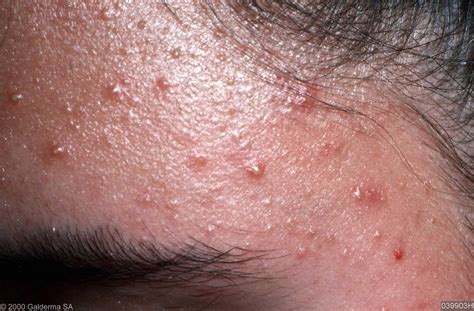 Folliculitis Images picture of folliculitis pictures photos