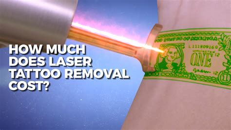 how much does laser removal cost claudio