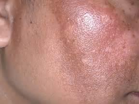 Dark brown spots on skin beautiful scenery photography