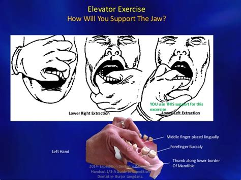 Exercising Teeth The Way by Expedition Dentistry Workshop Handout