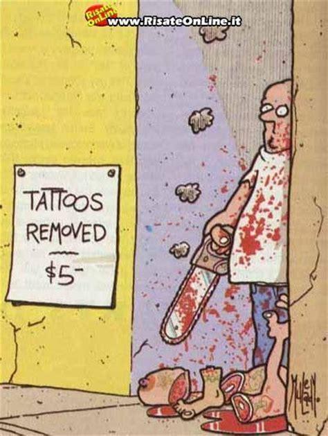 tattoo removal hashtags tattooremoval tattoos tattoo tattooing tattooed