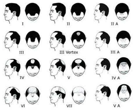 male pattern baldness numbers people who are balding casualconversation