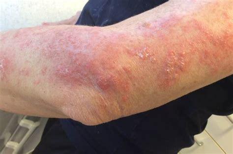 herpes zoster interno senza eruzione cutanea esantema braccio sinistro doccheck pictures
