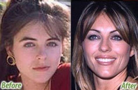 marys extreme makeover face nose and body stars before and after plastic surgery 47 pics
