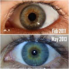 can you change your eye color gluten free on gluten celiac disease and take