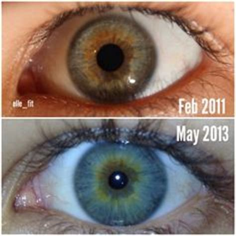 S Eye Color Changing After Detoxing by 1000 Images About Gluten Free On Gluten