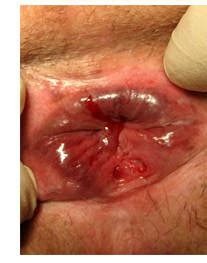 ragadi interne all ano ragade anale fessura acuta doccheck pictures