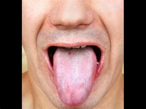 pale tongue 6 easy home remedies to get rid of white coated tongue