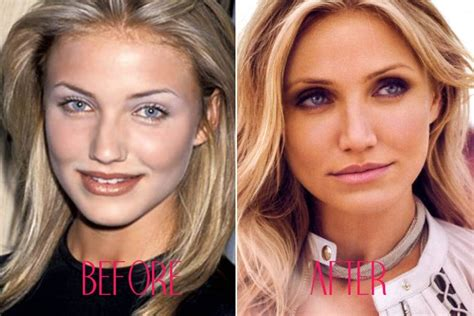 hollywood actress jobs good job 15 of the best nose jobs in hollywood the