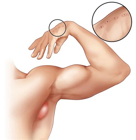 how to treat glands in armpit swollen enlarged lymph nodes in armpit zoombd24