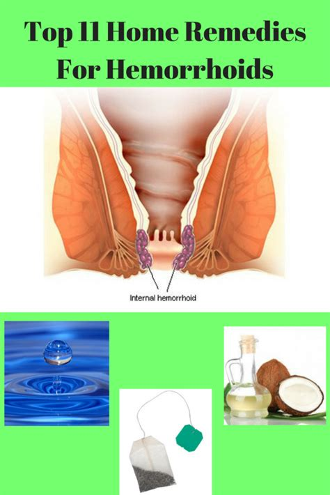 best remedy for hemorrhoids home remedies for hemorrhoids hemorrhoids treatment