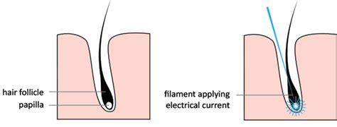 caress electrolysis ltd hair removal salon in ontario electrolysis angelina s electrolysis studio
