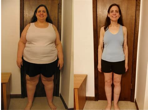 Gastric Sleeve Before And After Photos gastric sleeve before and after pictures and what you can