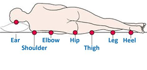 pressure ulcer locations diagram facilitywebsource