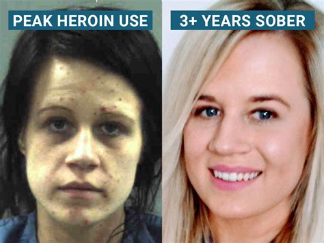 Detox For Heroin Users by Recovering Heroin Addict Explains Why So Many Fail